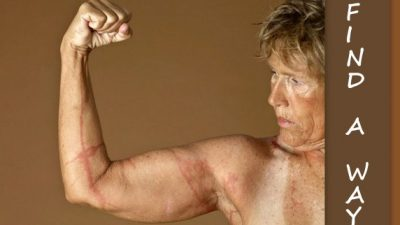 Image: Diana Nyad displays scars from Box Jellyfish