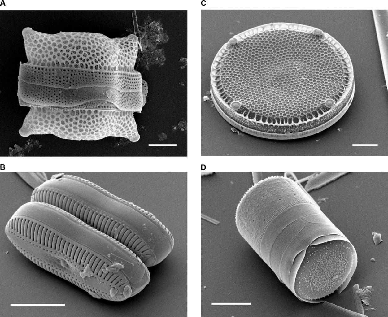 Image: 4 different diatoms