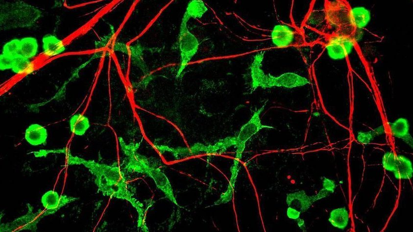Image: Microglia in the brain of a rat in green and alpha-internexin in red