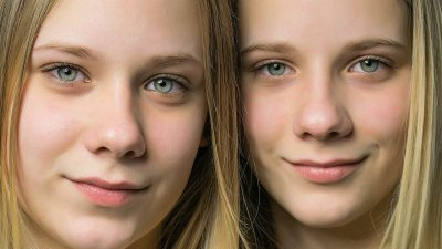 Image: Twins with who look like the have the same face