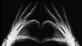 Image: X-ray of hands making a heart shape